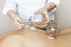 Fire cupping cups on back of female patient in Acupuncture thera Royalty Free Stock Image