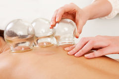 Fire Cupping Removal of Glass Globe Stock Image