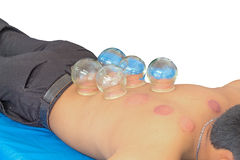 Fire Cupping  Removal Stock Images