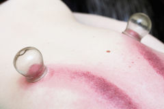 Fire cupping treatment to cup sb therapy woman Stock Photos