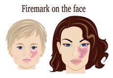 Firemark na cara Imagens de Stock