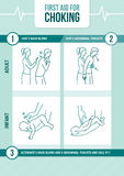 First aid for choking. First aid procedure for choking and heimlich maneuver for adults and infants Royalty Free Stock Photo
