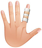 A first aid treatment on a finger. Illustration of a first aid treatment on a finger on a white background Royalty Free Stock Photos