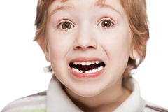 First baby milk or temporary tooth fall out Stock Image