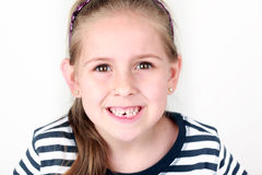 First missing tooth Royalty Free Stock Images