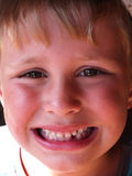 First tooth lost Royalty Free Stock Image