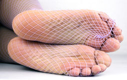 Fishnet nyloned soles Royalty Free Stock Images
