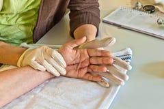 Fisioterapia após um ferimento de mão Foto de Stock