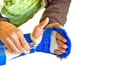 Fisioterapia da mão Fotografia de Stock Royalty Free