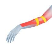 Fisioterapia para el dolor, los dolores y la tensión del codo Imagen de archivo libre de regalías