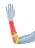 Fisioterapia para el dolor, los dolores y la tensión del codo Imágenes de archivo libres de regalías