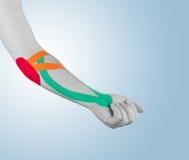 Fisioterapia per dolore, i dolori e la tensione del gomito Fotografie Stock
