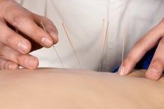 Fisioterapista che fa accupuncture Immagini Stock