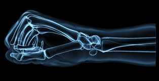 Fist under the x-rays Royalty Free Stock Photo