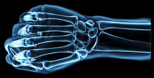 Fist under the x-rays Royalty Free Stock Images