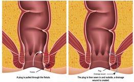 Fistula plug medical  illustration on white background with description. Eps 10 vector illustration