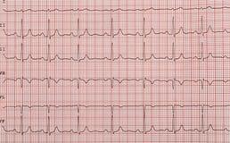Fita com o cardiograma Foto de Stock
