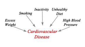 Causes to cardiovascular Disease Stock Image