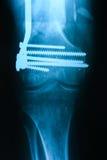 Fixação esquerda da fratura do tibiofibula após a operação, o fron Imagens de Stock Royalty Free
