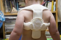 Fixation of fractured bone in toddler. Fixation of broken collarbone in toddler Stock Photo