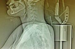 Fixering för position för halsröntgenstrålesammanträde Royaltyfria Bilder