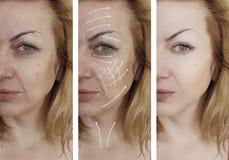 Flår ansikts- skrynklor för kvinna korrigeringseffektcosmetology som före och efter åldras tillvägagångssättpilen arkivbilder