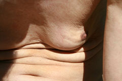 Flabby skin. Skin fold on the abdomen and chest Stock Photography