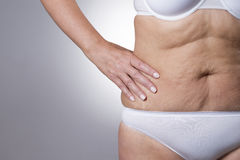 Flabby stomach of an elderly woman close-up Royalty Free Stock Photos