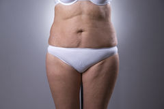 Flabby woman`s belly with stretch marks Stock Photo