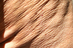 Flabby wrinkled skin on the human body Royalty Free Stock Photo