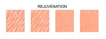 Flakowata skóra odmładzanie ilustracji