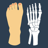 Flat design of  foot and  skeleton Royalty Free Stock Image