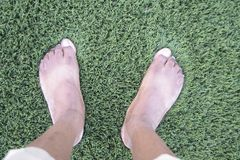 Flat Wide Feet. Flat feet also called pes planus or fallen arches is a postural deformity in which the arches of the foot collapse, with the entire sole of the stock photo