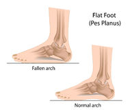 Flat foot. Normal arch and fallen arch Royalty Free Stock Image