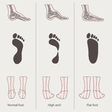 Flat foot, high arch Stock Photos