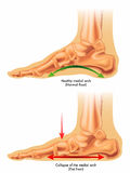 Flat foot. Medical illustration of the consequences of flat foot royalty free illustration