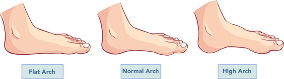 Flat and normal feet. Vector illustration of a Diving Kid Royalty Free Stock Photos