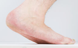 Flatfoot on the male foot with signs of fungal disease. Royalty Free Stock Image