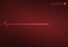 Flatline-Herz-Monitor - Alarm Lizenzfreie Stockbilder