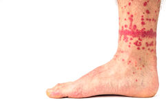 Flea Bites on Human Leg. Extreme case of flea bites on humans stock image