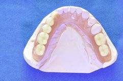 Flexible prosthesis 1. Removable dentures flexible, devoid of nylon, hypoallergenic exempt from monomer Stock Images