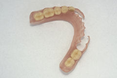 Flexible prosthesis. Removable dentures flexible, devoid of nylon, hypoallergenic exempt from monomer.Highlights la transparency of the structure Royalty Free Stock Photography