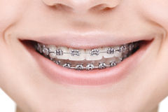 Flicka för brett leende med metallhänglsen closeup royaltyfria foton