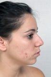 Flicka med akne (3) Arkivbild