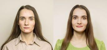 Flicka med akne Arkivfoto