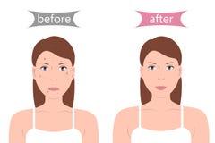 Flicka med akne före och efter Arkivfoton