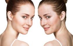 Flicka med behandling för akne före och efter Royaltyfri Foto