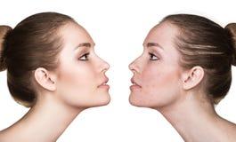 Flicka med behandling för akne före och efter arkivbilder