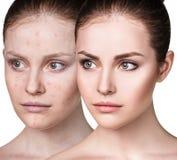 Flicka med behandling för akne före och efter arkivfoto