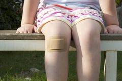 Flicka med stor murbruk på hennes knä Fotografering för Bildbyråer